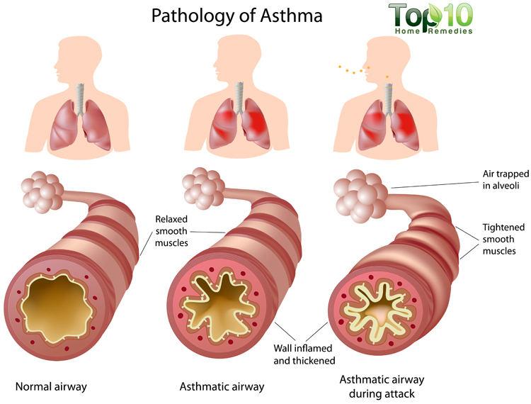 asthma-big